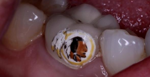 redskins teeth tattoo