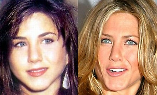 before after plastic surgery aniston