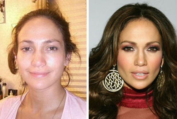 Relativaly Shocking Photos Of Celebrities Before And After Plastic Surge