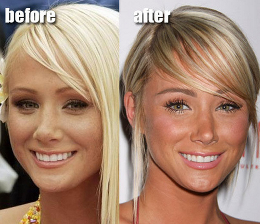 celebrities before after plastic surgery