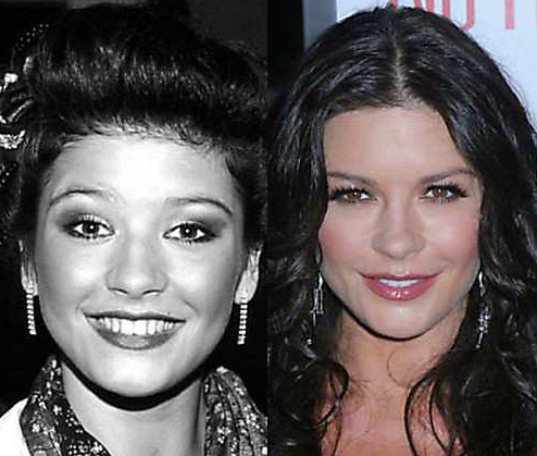 celebrity plastic surgeruy before after photos