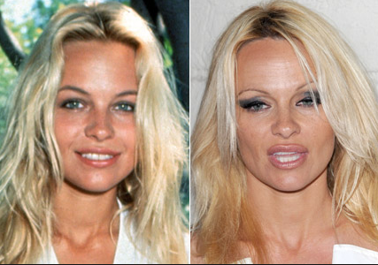 pamela anderson before plastic surgery