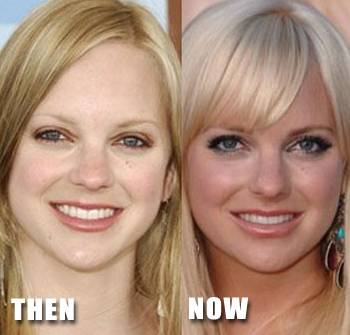 plastic surgery celebrity photos