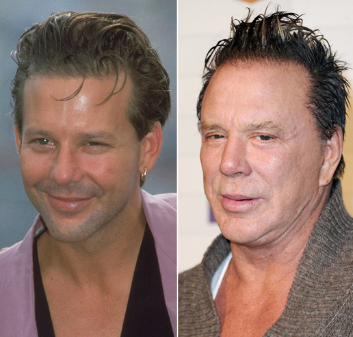 worst celebrity plastic surgery